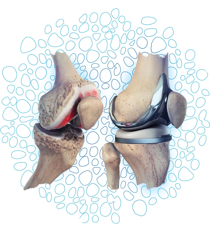 prothèse metal genou
