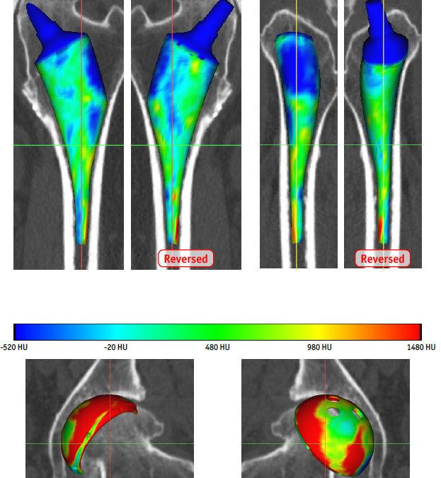 Arthrose de hanche et prothèse de hanche sur mesure: pourquoi, comment et pour qui?