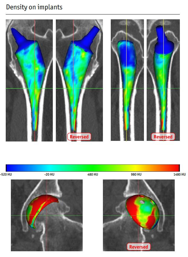Prothèse totale genou